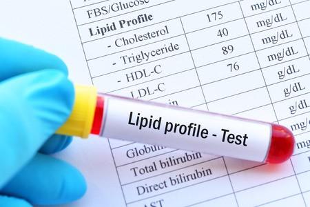 Tests antigéniques : tout ce qu'il faut savoir